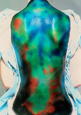Liquid crystal thermography of a healthy back