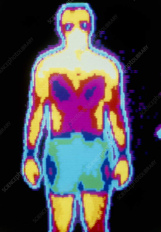 Thermogram of a standing man