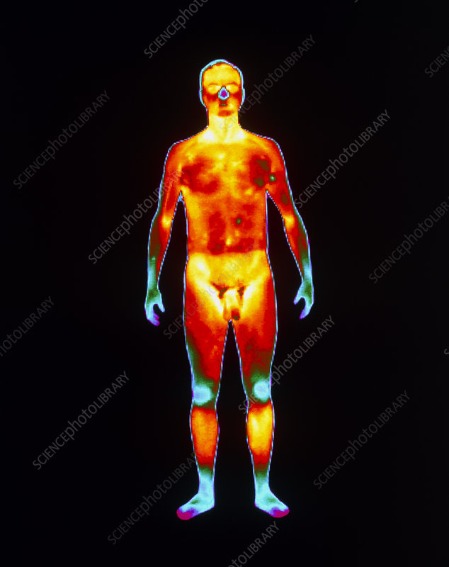 Thermogram of a standing naked man (front view)
