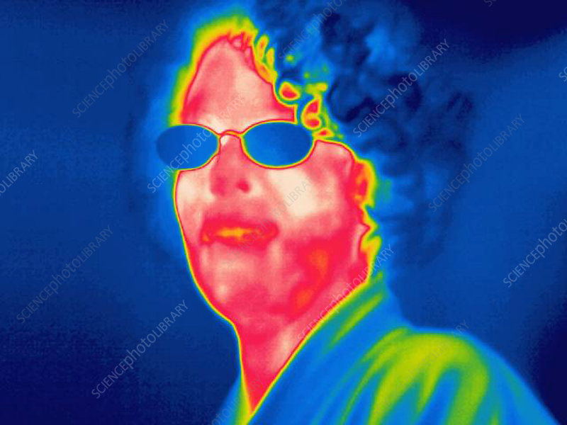 A thermogram of a woman with glasses