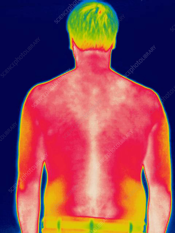 A thermogram of a man