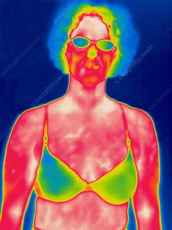 A thermogram of a woman in a bra