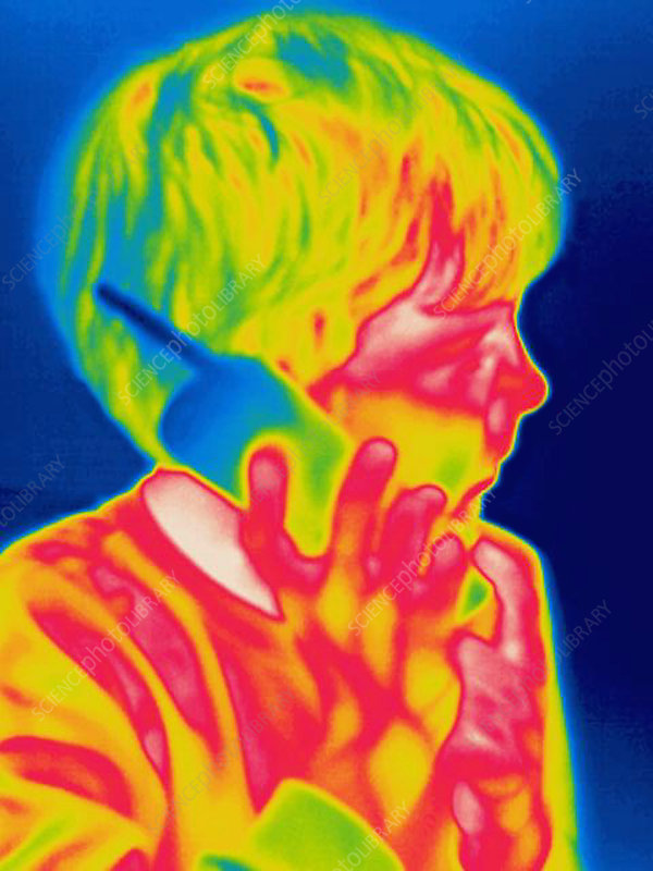 A thermogram of a boy talking on the phone