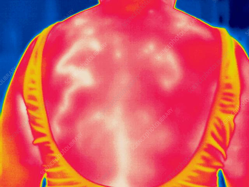 A thermogram of an elderly womans back