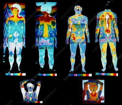 Human body, thermograms
