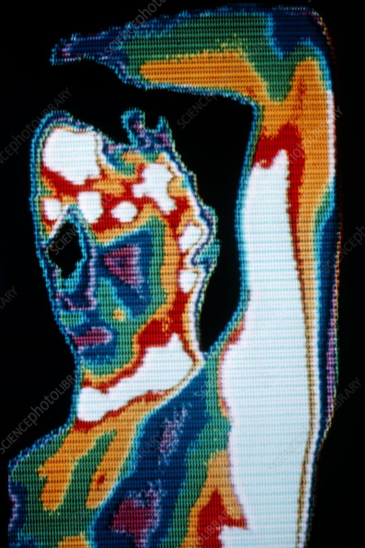 Thermogram of man holding left arm above head