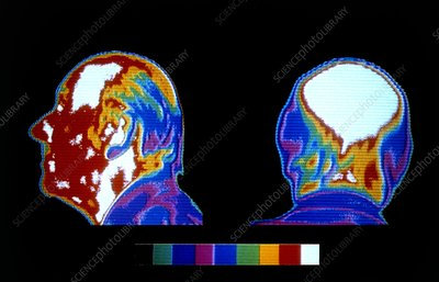 Thermographs of balding man, side & rear views