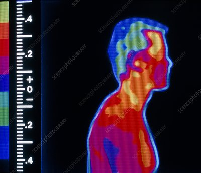 Thermogram of head & upper torso of a man