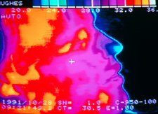 Thermogram of head in profile