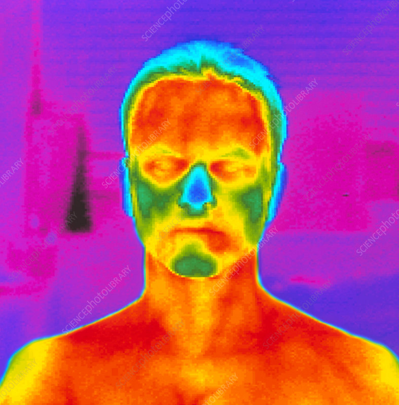 Thermogram of a man's head and shoulders