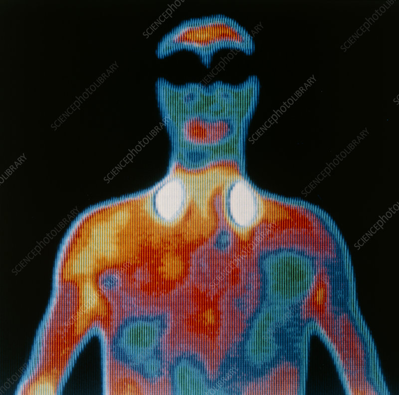 Thermogram of man