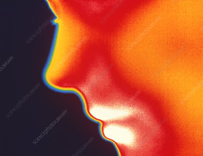 Face thermogram