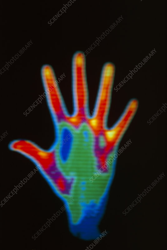 Thermograph of man's hand showing palm upward