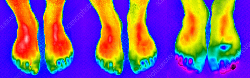 Thermogram of feet
