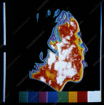 Man's head, thermogram