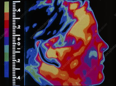 Thermogram of head