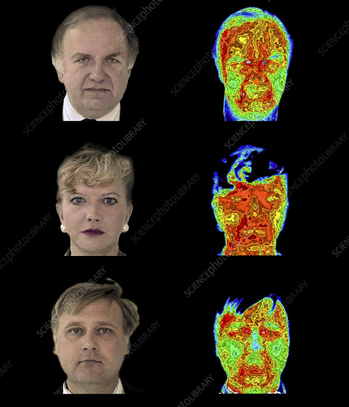 Head thermograms