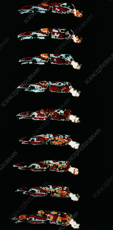 Sequence of 9 thermographs of sleeping man