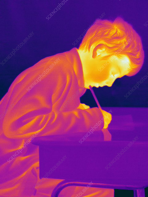 Thermogram of a Boy