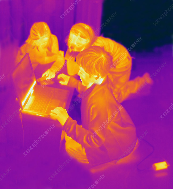 Thermogram of Children