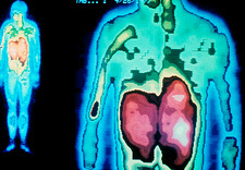 Gamma-camera scan showing stomach & liver