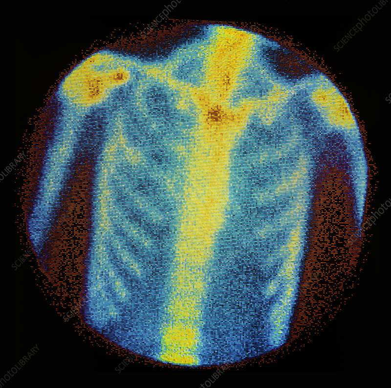 Normal bone scan of chest: anterior view