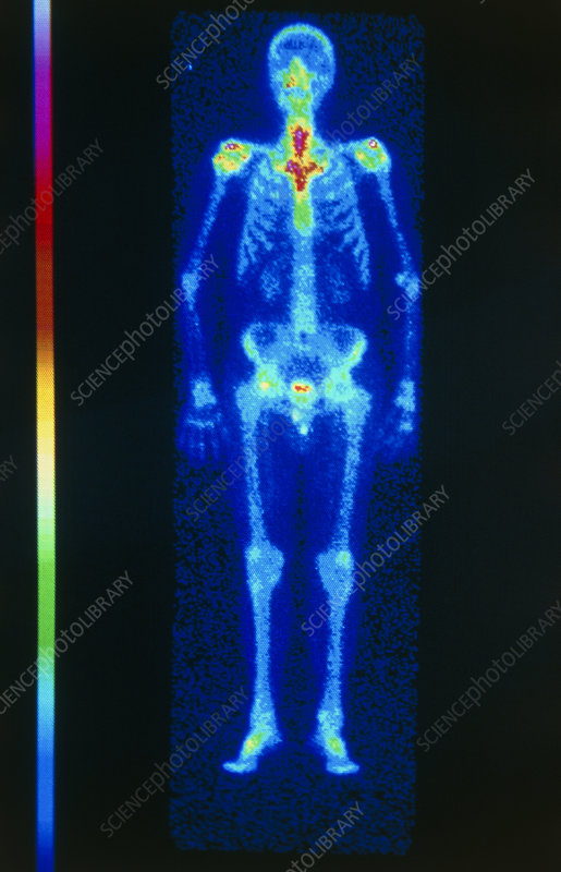 Skeleton gamma scan