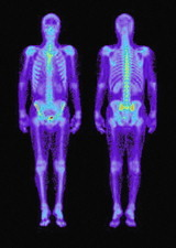 Skeleton gamma scans