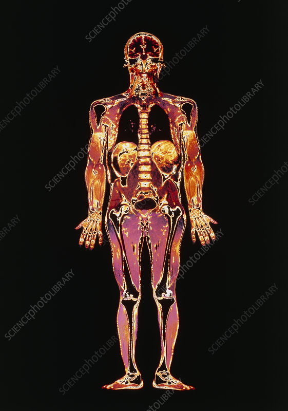 F/col MRI scan of whole human body
