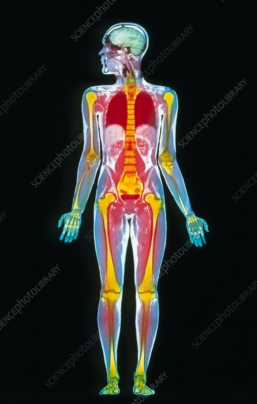 Coloured MRI whole body scan of a man