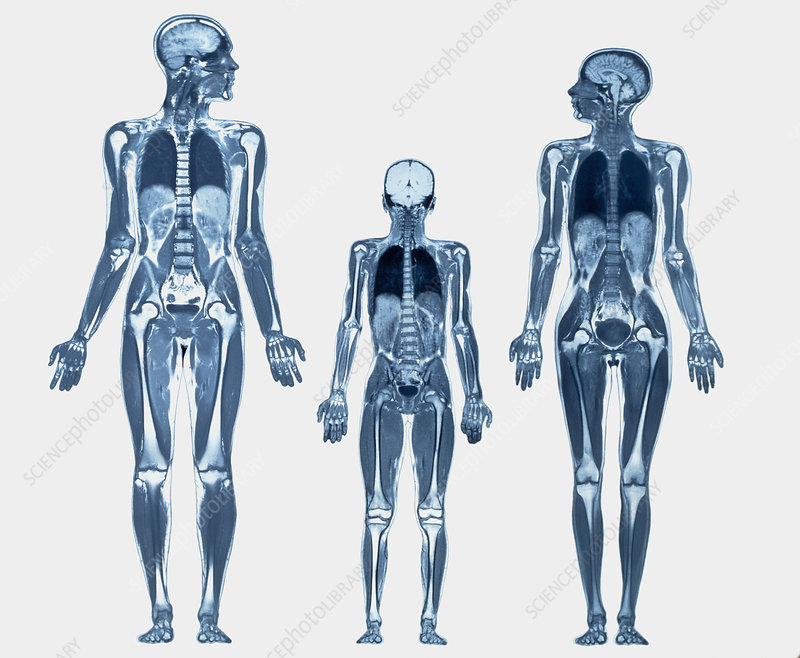 Whole body scans