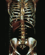 Thorax and abdomen, EBT scan
