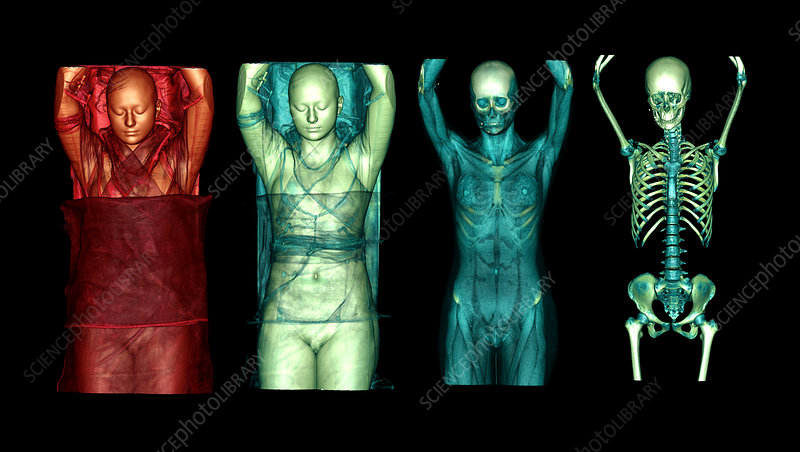 Female body, CT scans