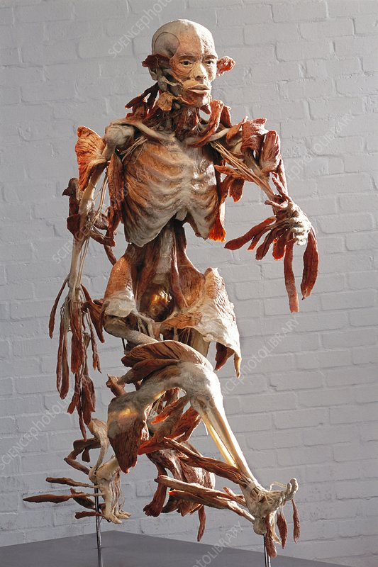 Human anatomy, Bodyworlds exhibit