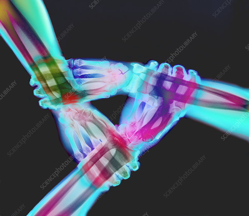 X-ray of a triangle of three linked hands