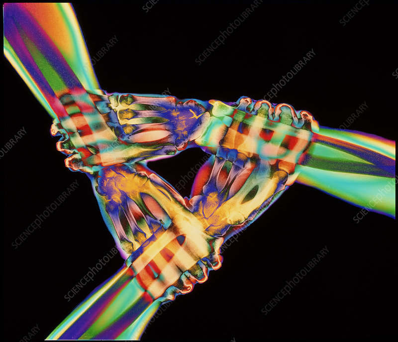 Coloured X-ray of a triangle of three linked hands