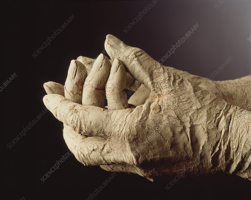 Mud-covered hands