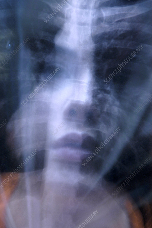Woman with an X-ray, conceptual image