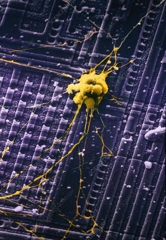 SEM of human nerve cells on silicon chip
