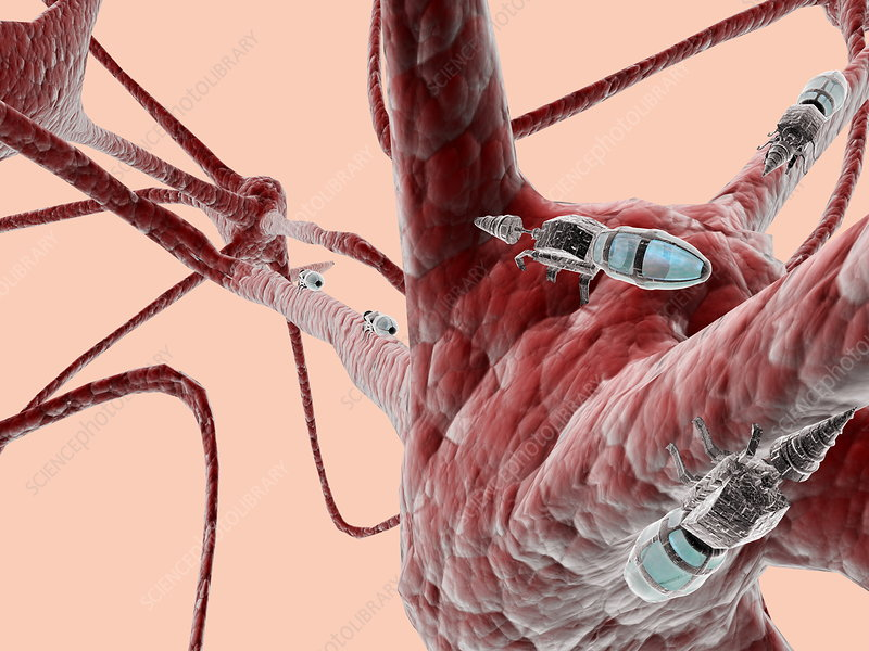 Nanorobots on brain cells