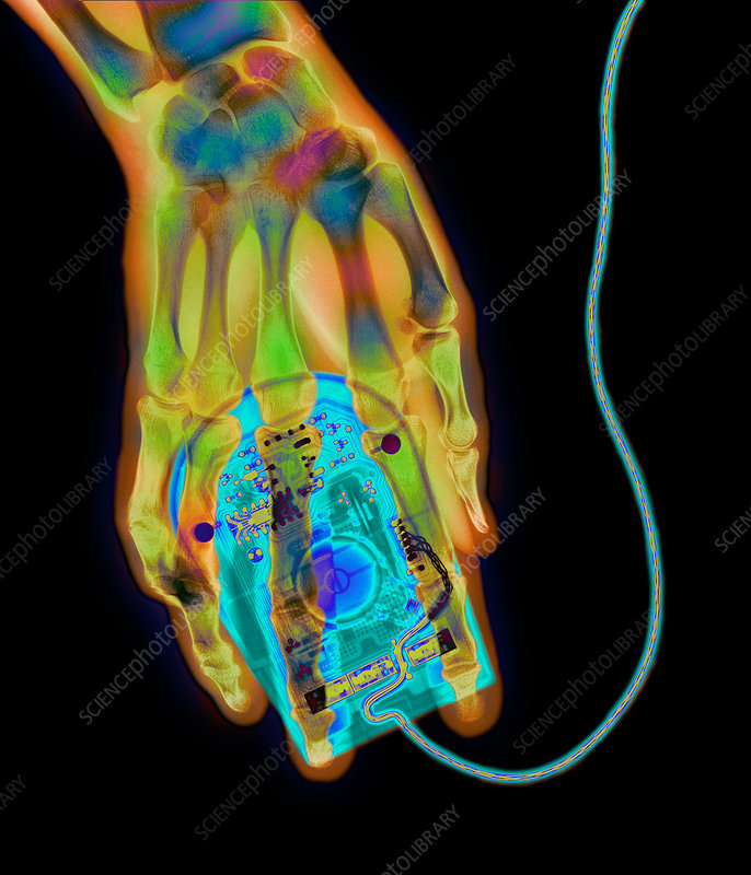 Coloured X-ray of a computer mouse and human hand