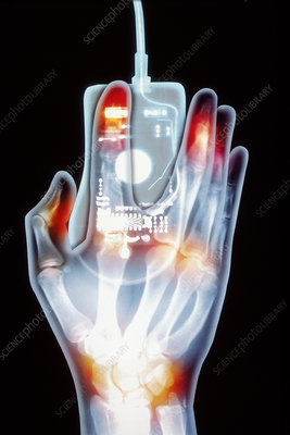 Artwork based on X-ray of hand and computer mouse