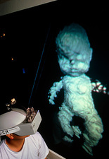 Researcher with 3D ultrasound image of foetus