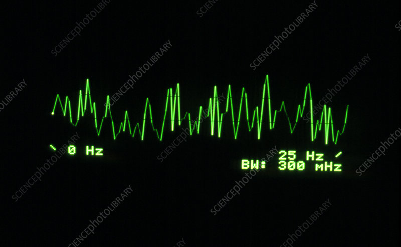 Brain activity 0-25 Hz, supressed 13.25Hz signal