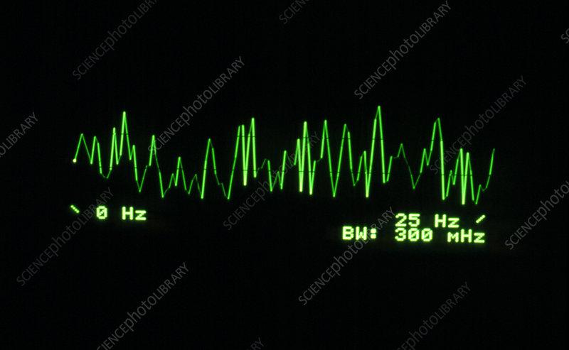 Brain activity 0-25 Hz, supressed 13.25Hz signal