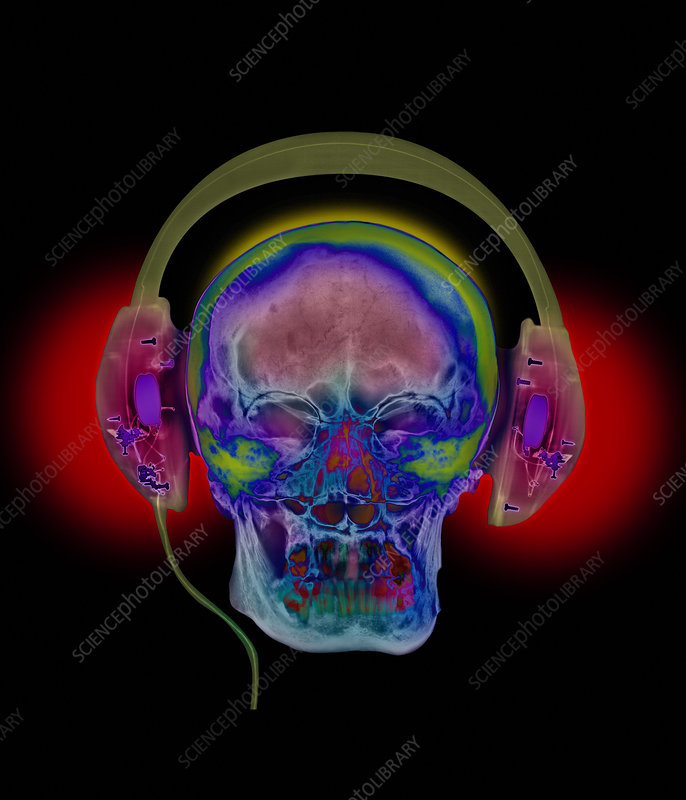 Coloured X-ray of a head wearing audio headphones