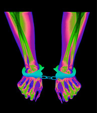 X-ray of a person's wrists in handcuffs