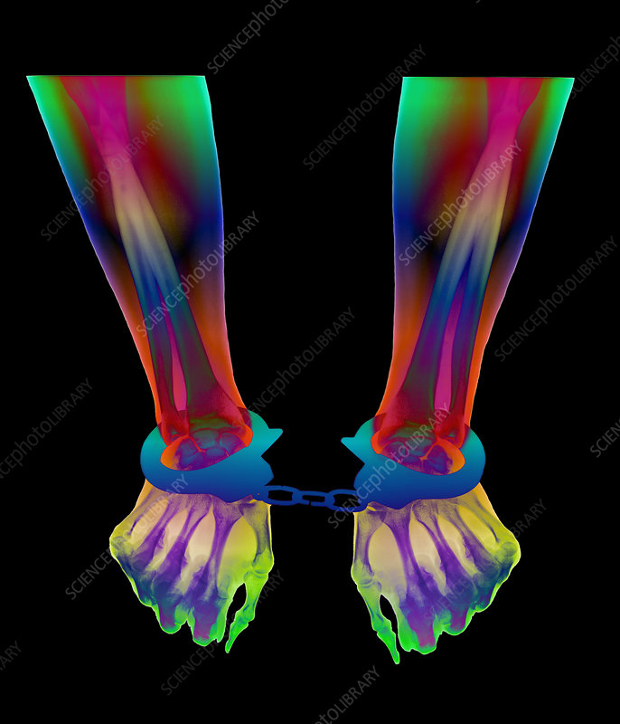 Coloured X-ray of a person's wrists in handcuffs