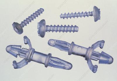 Shape memory polymer screws