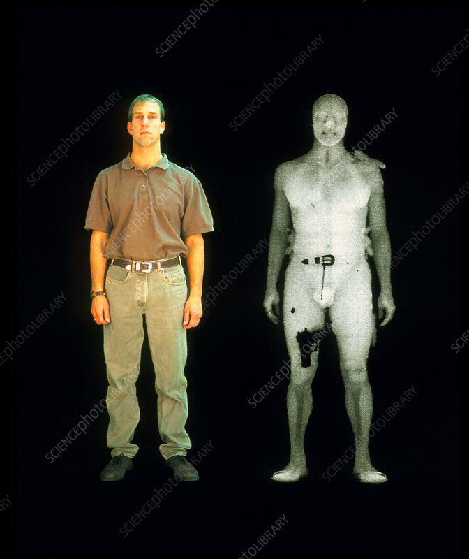 X-ray of man from BodySearch surveillance